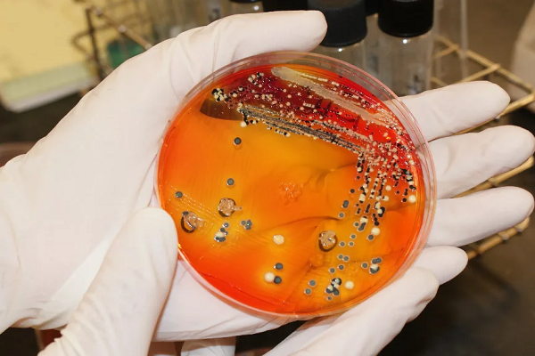 Страусиный сальмонеллез: признаки болезни и лечение